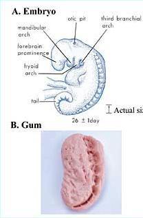 verblüffende Ähnlichkeit: Embryo nach ca. 3 Wochen und Kaugummi (Kieferabdruck)